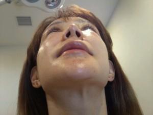 切らない小鼻縮小 術後2日目