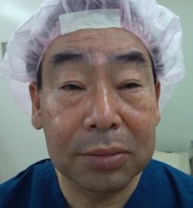眉毛下切開 (目のたるみ取り手術)