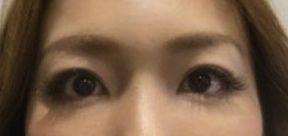 眼瞼下垂術後