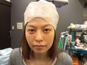 黒目手術 術前
