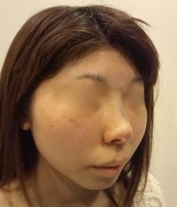 鼻プロテーゼ抜去術直後