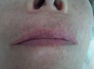 唇 注射直後