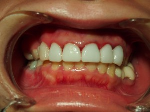前歯の審美治療