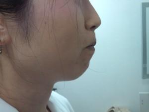 顎botox before