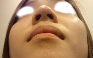 団子鼻の整形