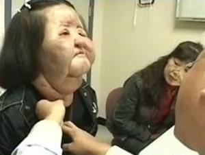 無資格で美容整形、韓国人女性を逮捕