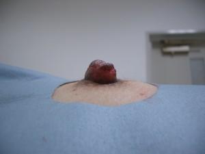 切らない陥没乳頭手術 術直後