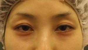切らない眼瞼下垂手術 術前