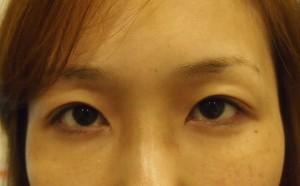 切らない眼瞼下垂手術 術後2週目