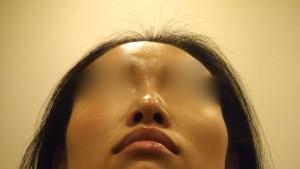 切らない鼻翼縮小、鼻尖形成
