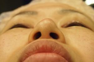 プロテーゼ抜去+鼻尖形成術