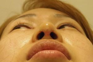 鼻尖形成術後3日目