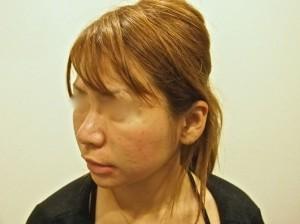 頬ヒアルロン酸注射前