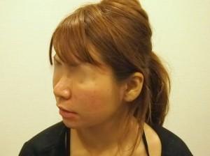 頬ヒアルロン酸注射直後