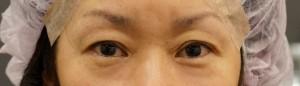 切らない眼瞼下垂手術 術直後