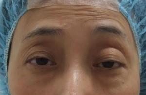 切らない眼瞼下垂手術 まとめ