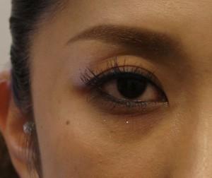 上眼瞼のヒアルロン酸注射