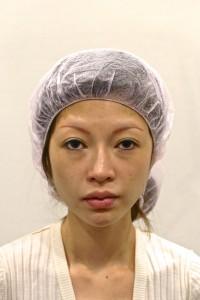 眉毛下切除術