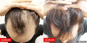薄毛の治療に幹細胞が有効