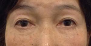 目の下のクマ取り手術