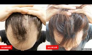 円型脱毛症