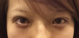 黒目整形 術直後-300x146