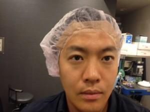 黒目整形 手術直後