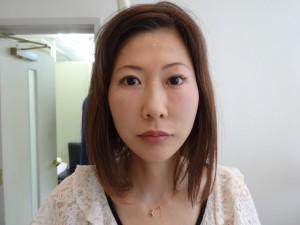 黒目整形 術後7か月