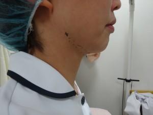 二重あごの治療 3Dリフト