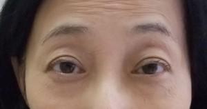 切らない眼瞼下垂手術 術後1ヶ月目
