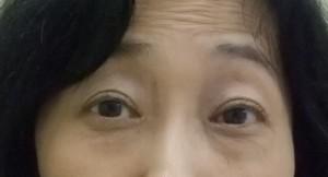 切らない眼瞼下垂手術 術後1週目