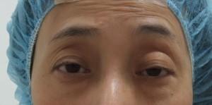 切らない眼瞼下垂手術 術後経過