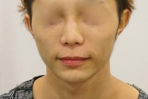 鼻の下を短くする手術