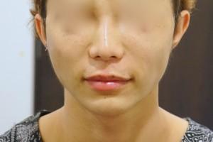 切らない鼻下短縮術 術直後