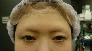 切らない眼瞼下垂手術 NSLT法