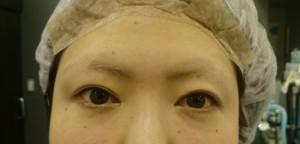 切らない眼瞼下垂手術 NSLT法手術直後