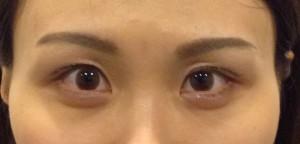 切らない眼瞼下垂手術 術後