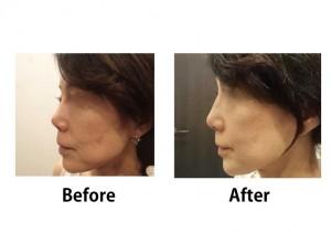 整形顔を修正する