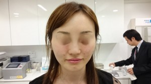 3D 手術直後