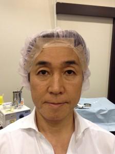 切らない眼瞼下垂手術+眉毛下皮膚切除術 術前