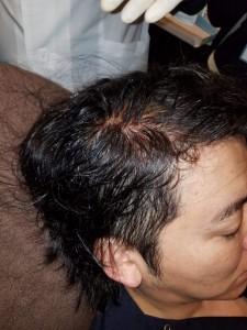 毛髪インプラント 施術直後