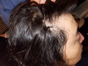 毛髪インプラント 施術前