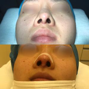 鼻尖縮小術、鼻中隔延長術