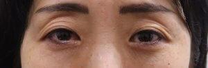 切らない眼瞼下垂手術