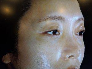 ダウンタイムが少ない鼻尖縮小術