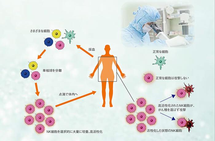 NK細胞(ナチュラルキラー細胞)
