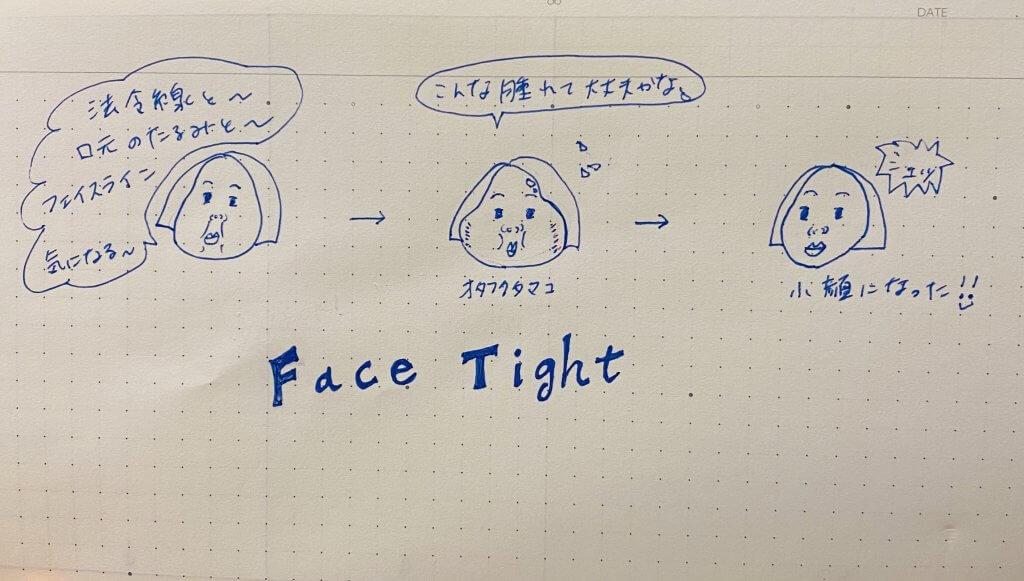 フェイスタイト~最新小顔治療~