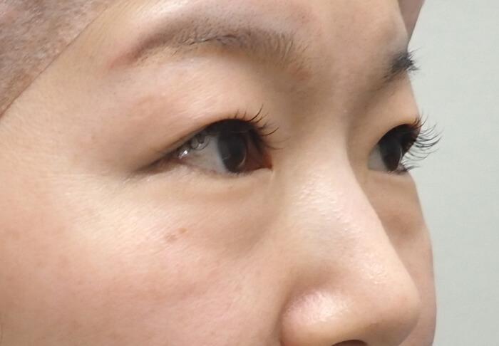目の下のふくらみ・たるみ諦めていませんか?⑤ -facial antiaging! –