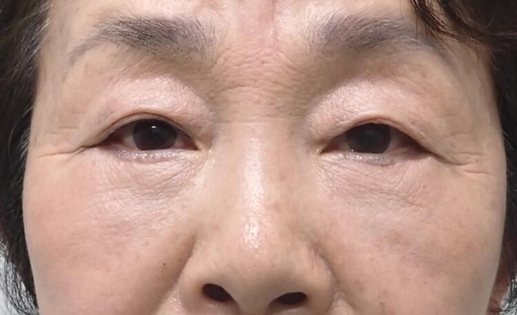 目の下のふくらみ・たるみ諦めていませんか?④ -facial antiaging! –