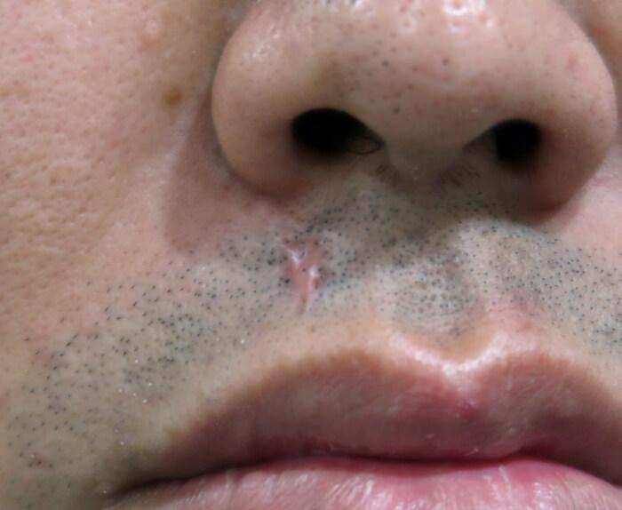 傷跡の修正について-scar revision編-